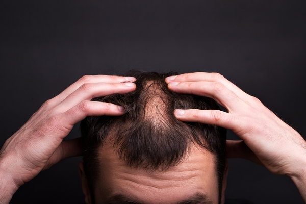 Main Causes of Hair Loss And How To Prevent